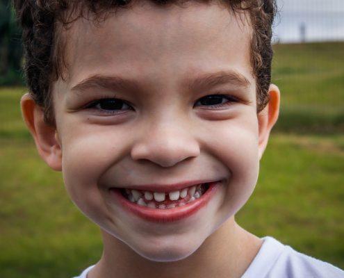 سفید کردن دندان کودک