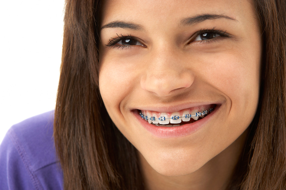 how to keep your teeth white with braces