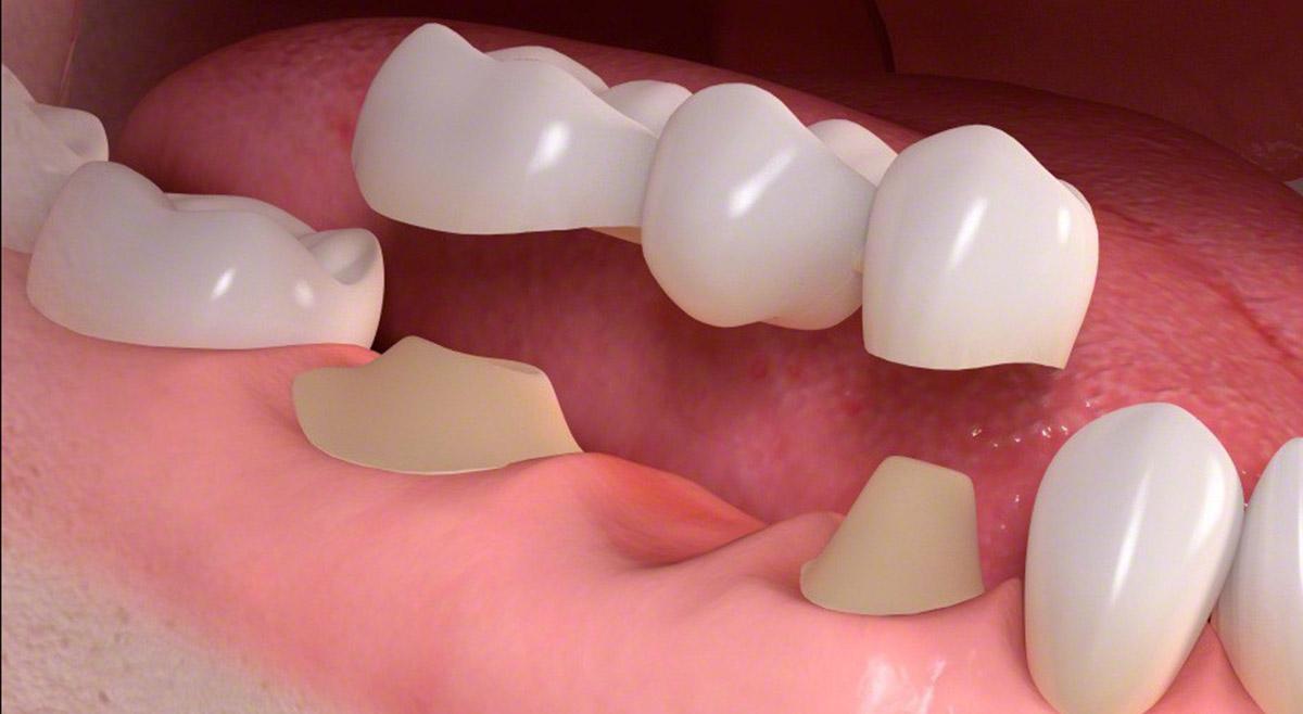 نتیجه تصویری برای بریج دندان