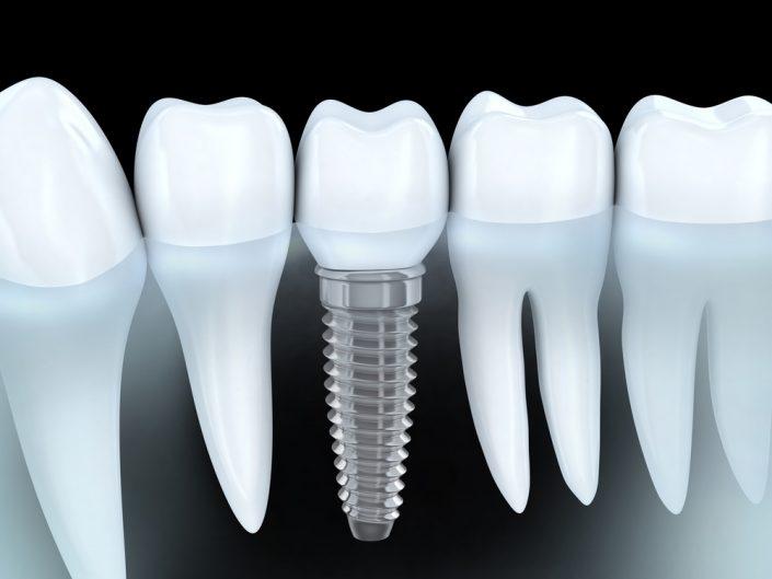 ارتودنسی با وجود ایمپلنت دندان ، روکش و ونیر