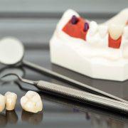 بهترین روکش دندان برای شما