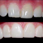 ونیر دندان : همه چیز درباره آن